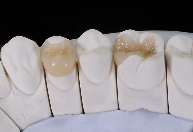 Dental inlay and Onlays Cape Town - Ratan and Sign Dentistry